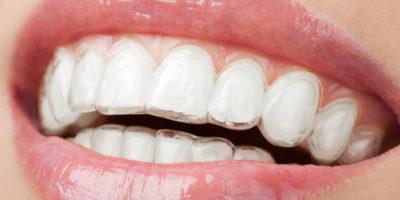 Invisalign, la mejor ortodoncia estética y transparente