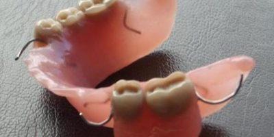 Consejos para cuidar mi prótesis dental