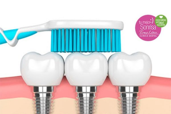¿Qué cuidados necesita un Implante Dental?