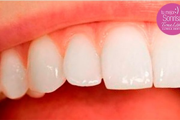 Perdida del esmalte dental.