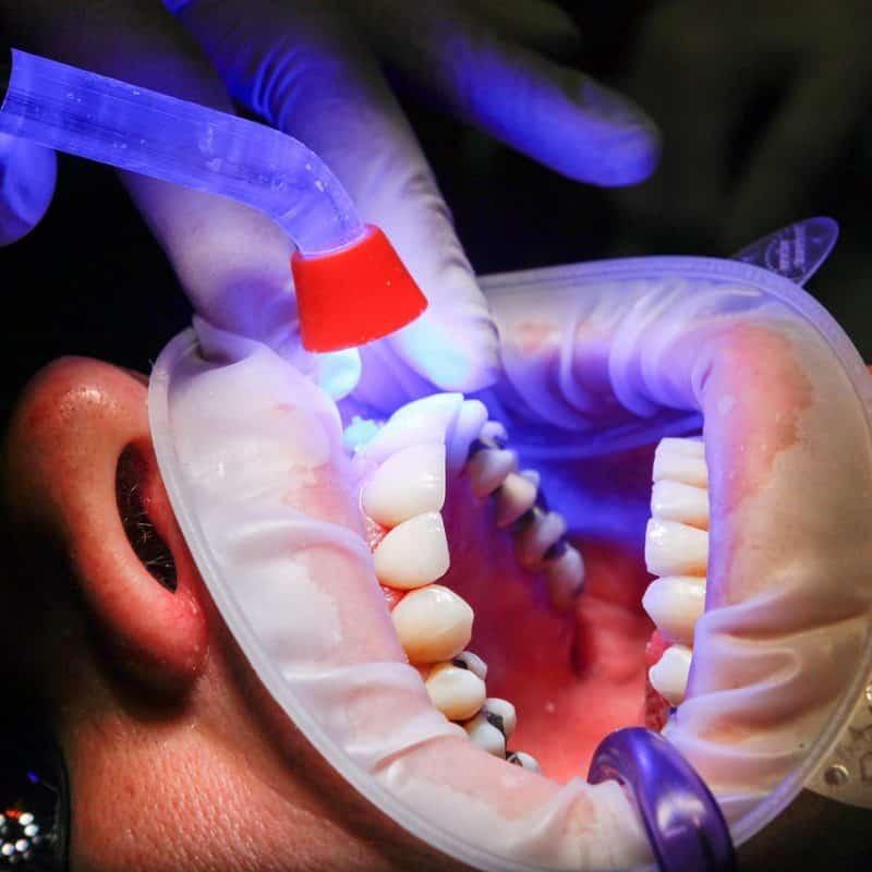 Carillas dentales en Las Palmas