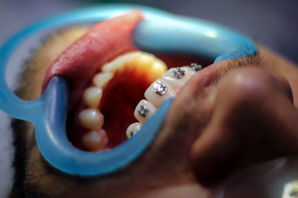 Ortodoncia en Las Palmas