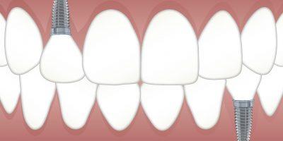 Implantes dentales en Las Palmas