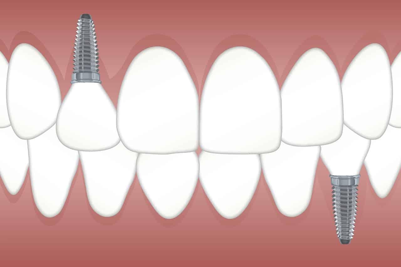 En este momento estás viendo Implantes dentales en Las Palmas