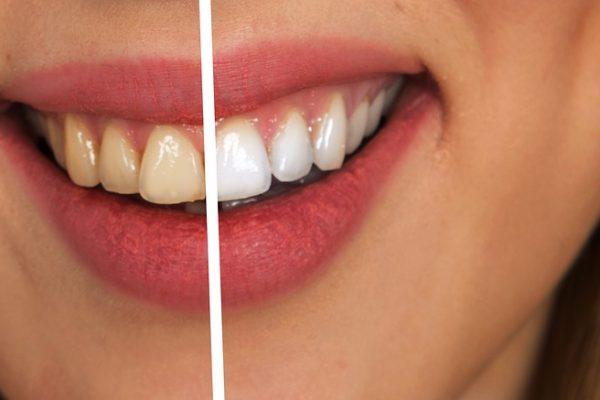 Blanqueamiento dental en Las Palmas