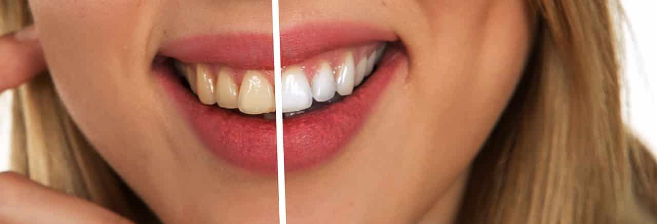 You are currently viewing Blanqueamiento dental en Las Palmas